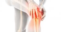 اطمن على نفسك تحاليل وأشعة يطلبها طبيبك لتشخيص التهاب العظام والنخاع